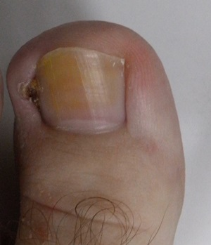 what-is-an-ingrown-toenail-stage-2
