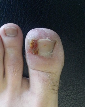 what-is-an-ingrown-toenail-stage-3