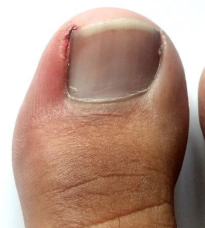 what-is-an-ingrown-toenail.jpg