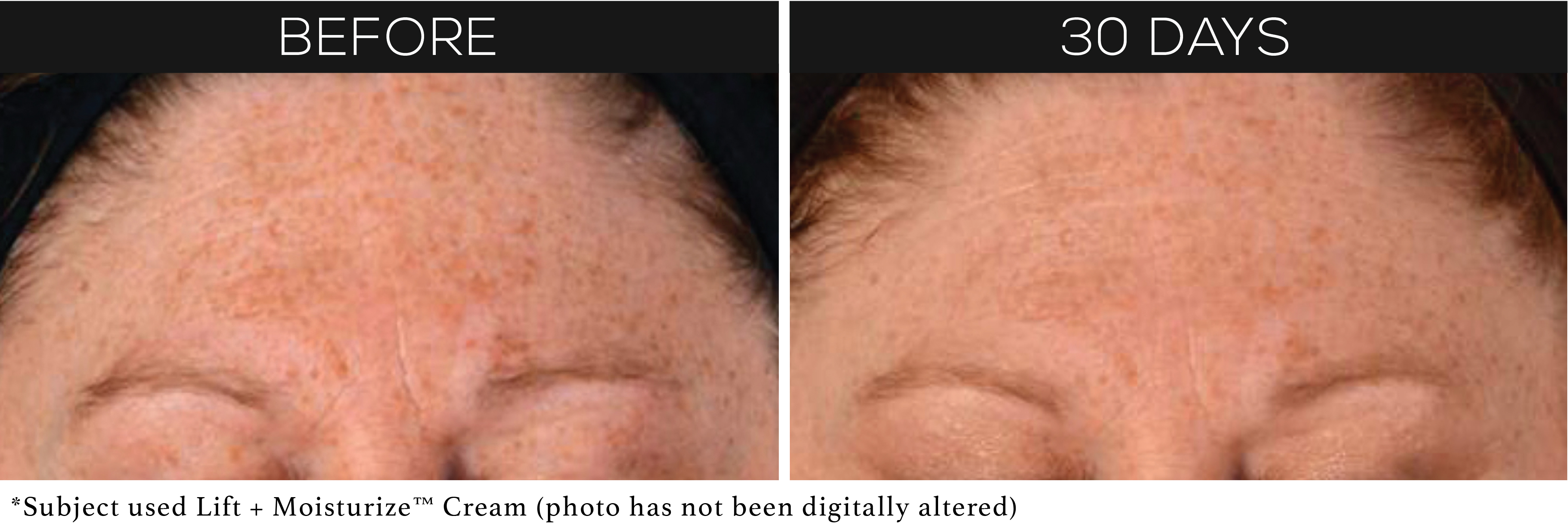 before-after-lift-moisturize2.jpg