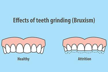 bruxism teeth grinding damage