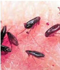 flea-bites.png