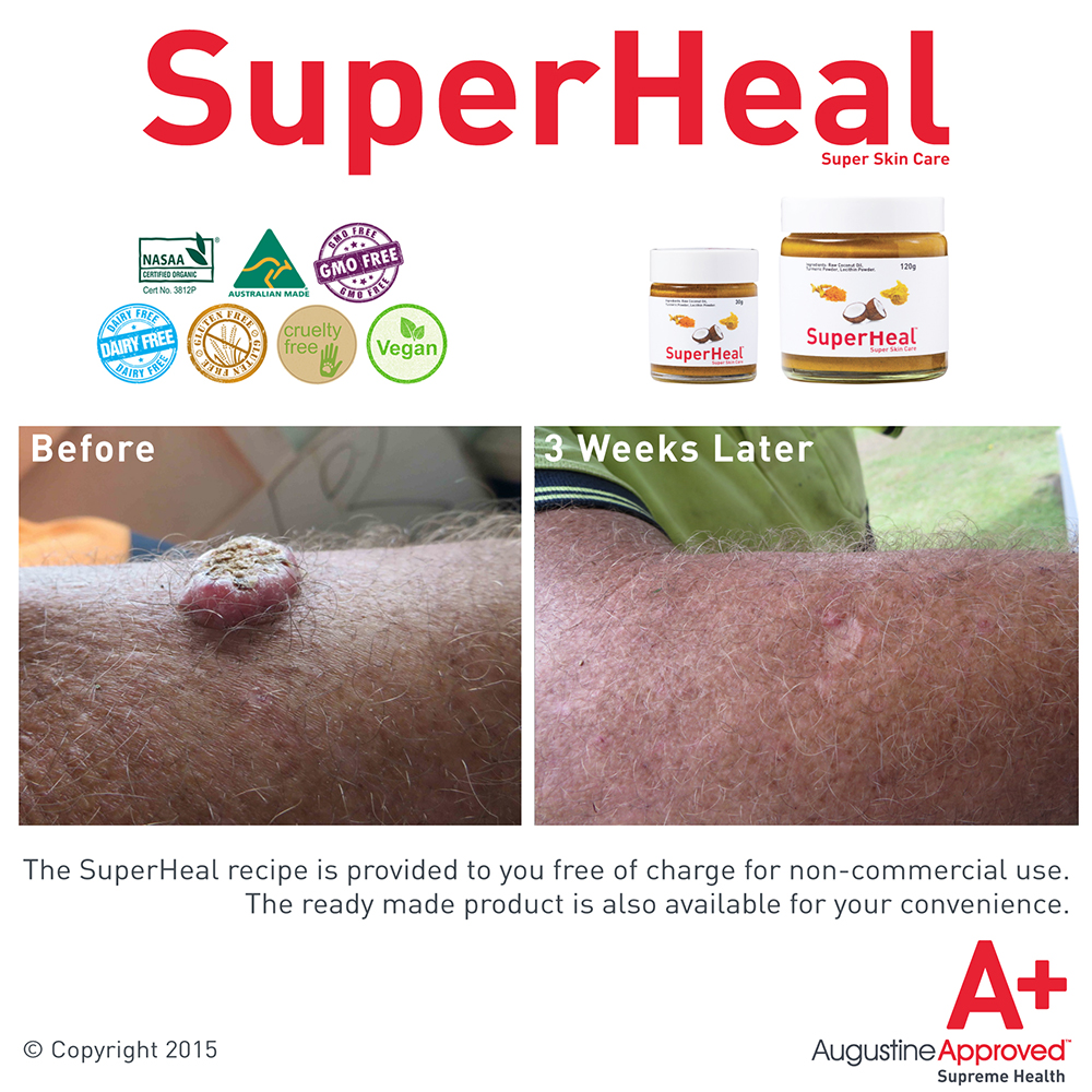 superheal-before-after.jpg