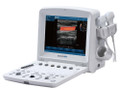 Edan U50 Diagnostic Ultrasound System # U50Prime - Each