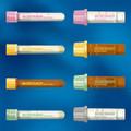 BD Vacutainer Safety-Lok Blood Collection Sets # 367283