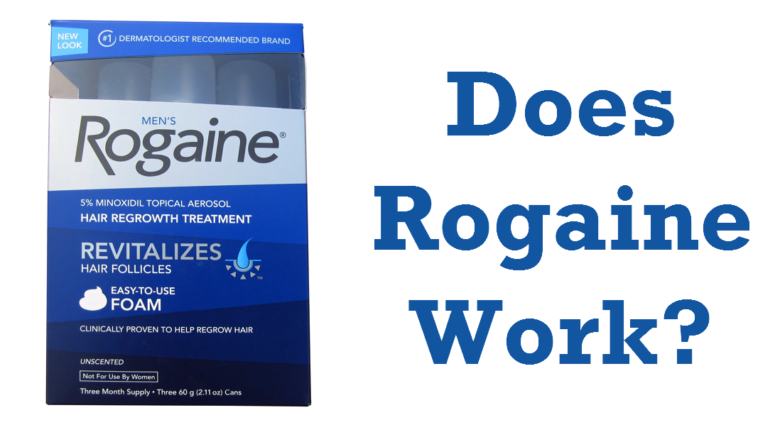 does-rogaine-work.png