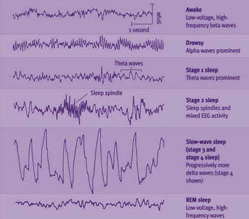 Sleep Stages Diagram