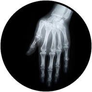 X Ray Hands BR